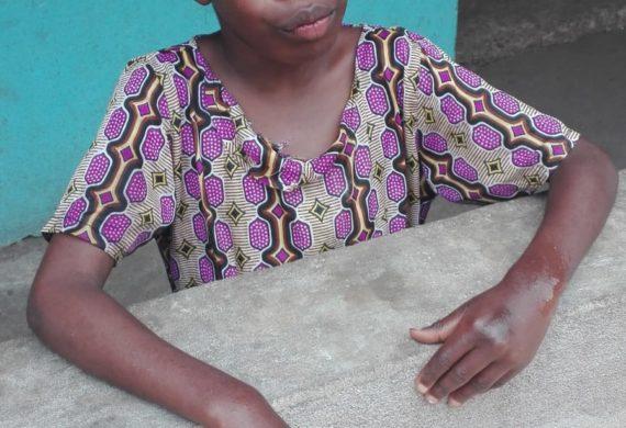 Ngozi, la bambina che vorrebbe sentire la vita